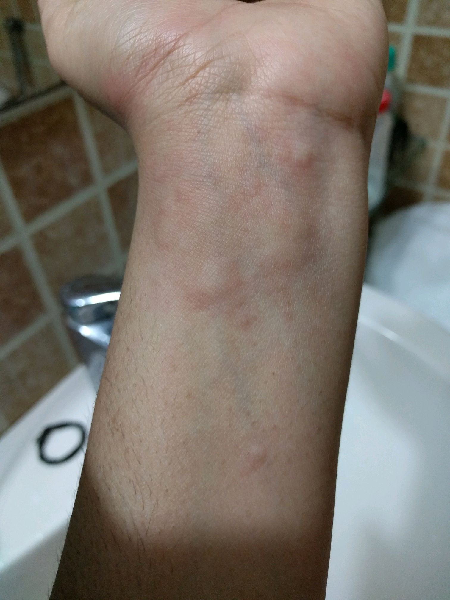 Bumps On Skin It Gets All Over Body Please Suggest Medicine-4288