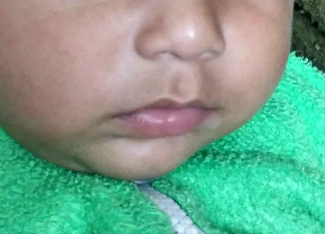 Hi 5 Month Old Baby Has White Spot On His Lips Left Side Is